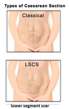 Birth Injury Attorneys Uterine Womb Rupture