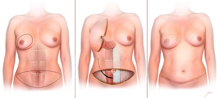 breast reconstruction risks