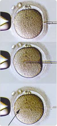 Intracystoplasmic Sperm Injection (ICSI)