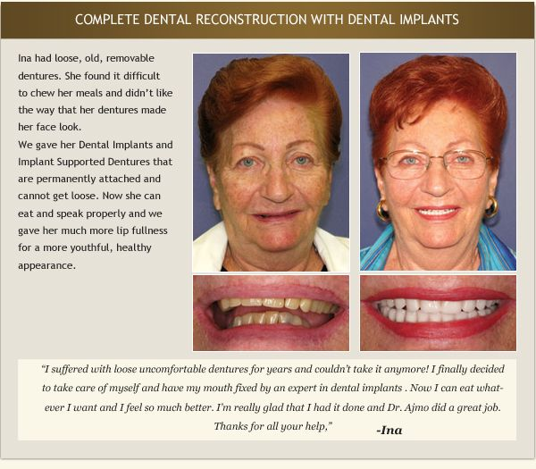 Woman's dental implant testimonial and photo