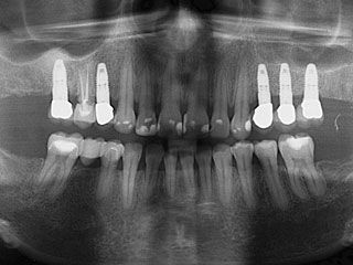 X-ray of teeth and implants