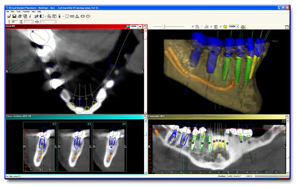 Diagram using 3D CT Scan