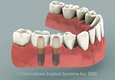 diagram of completed dental implants