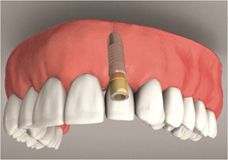 Diagram of completed dental implant
