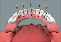 Implant-supported dentures being inserted
