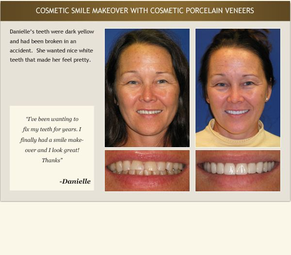 Patient Danielle's testimonial and before and after photos