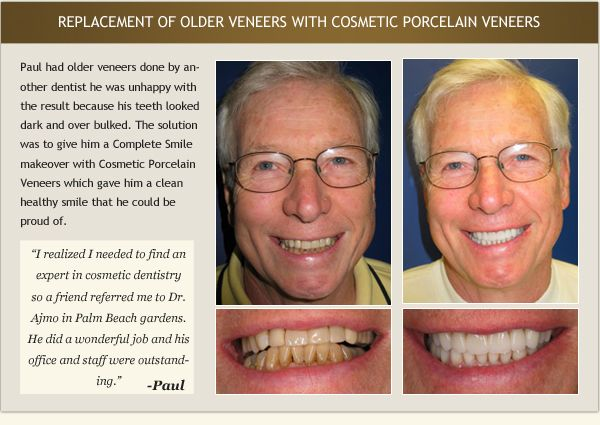 Patient Paul's testimonial and before and after photos