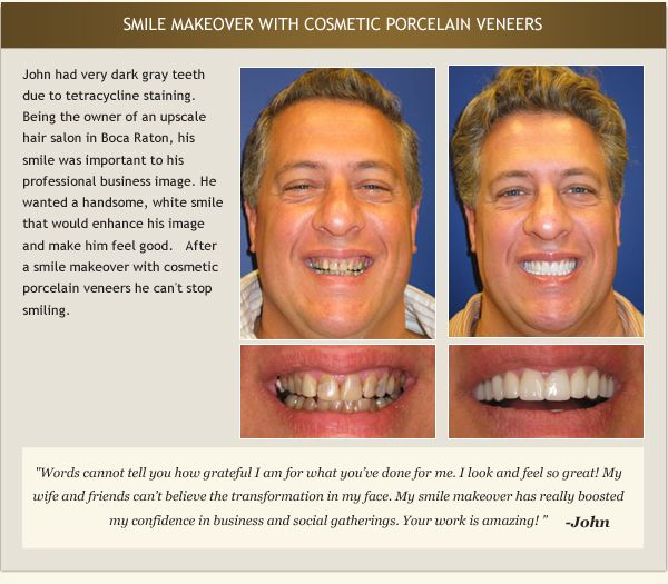 Patient John's testimonial and before and after photos