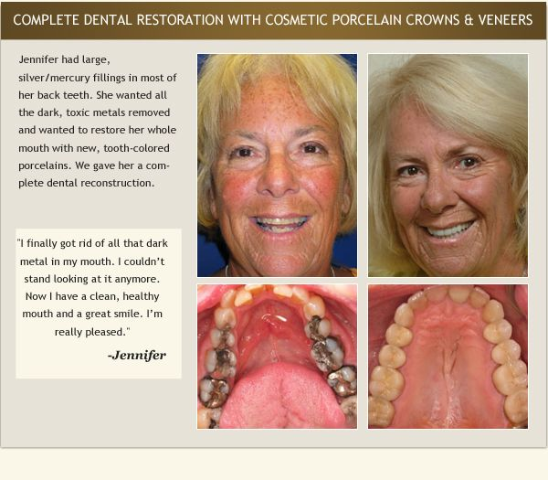Patient Jennifer's testimonial and before and after photos