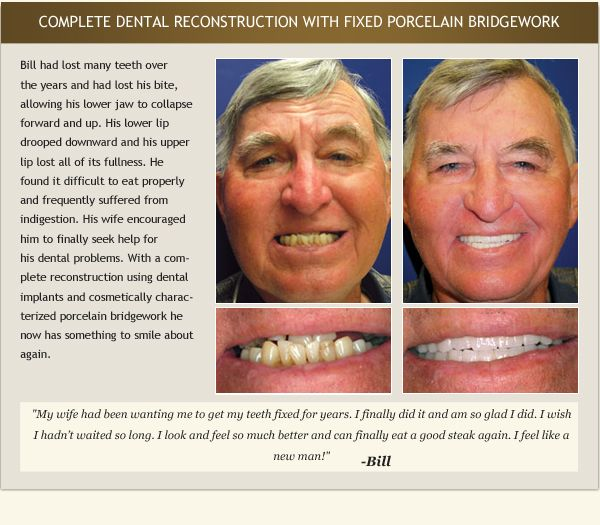 Patient Bill's testimonial and before and after photos