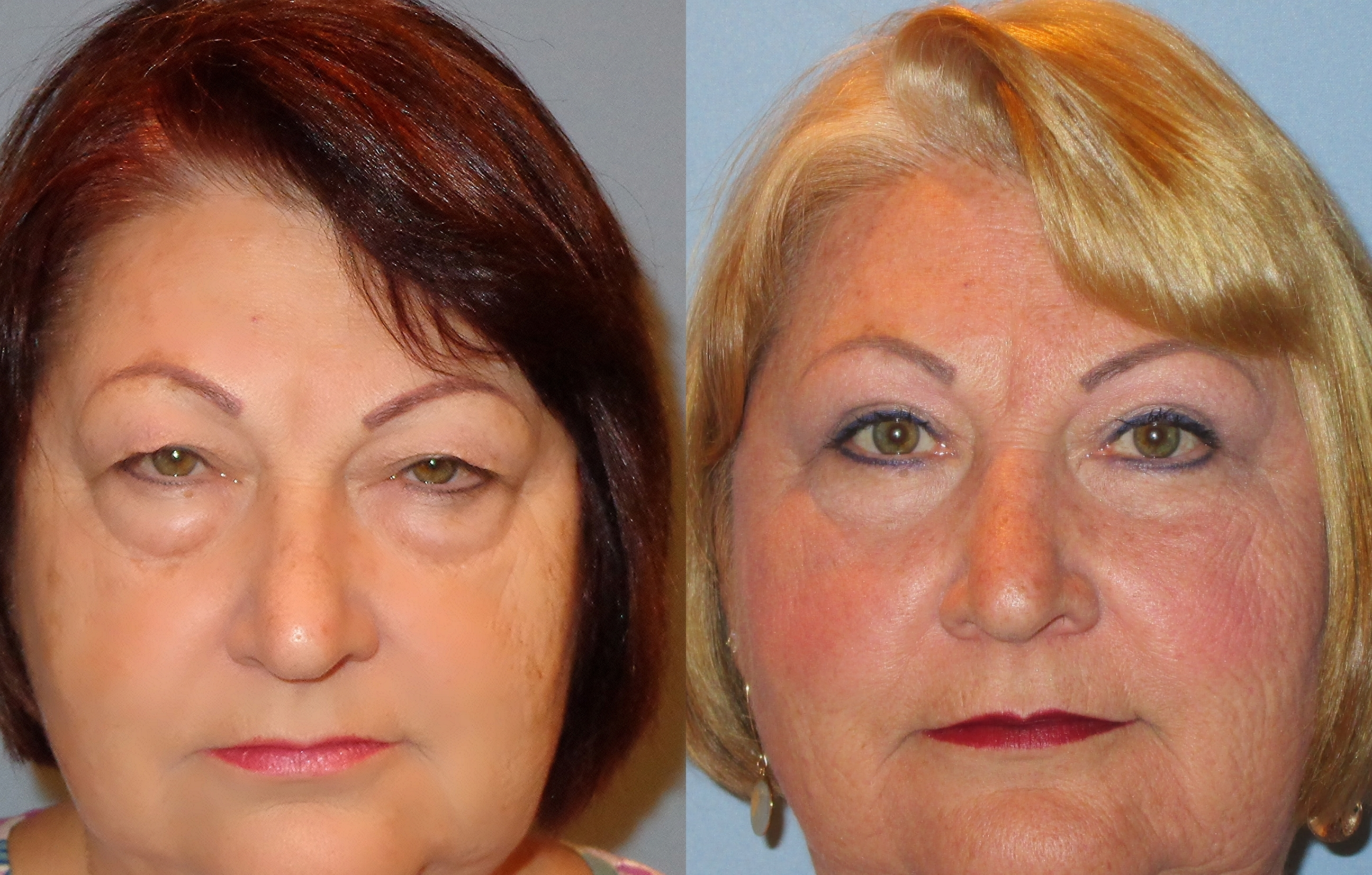 Japanese Chamber of Commerce and Industry of New Eyelid surgery pictures healing