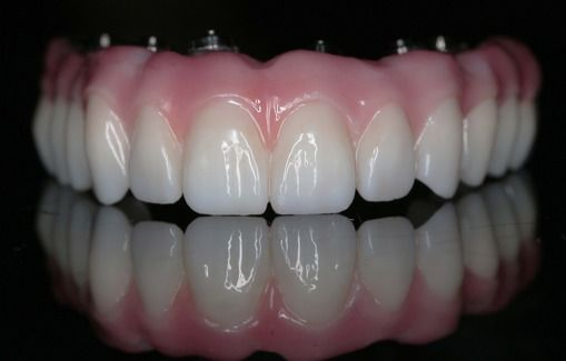 A Prettau® dental implant supported bridge.
