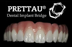 Prettau® Dental Implant Bridge