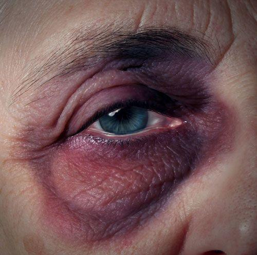 Elderly person with blackened eye