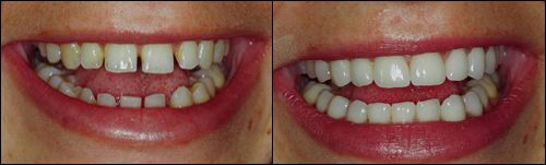 Smile Gallery Before Amp After Pictures Garden City Smiles