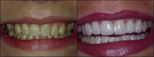 Smile Gallery Before After Pictures Garden City Smiles Long