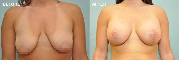 Before and after photo of a breast lift patient
