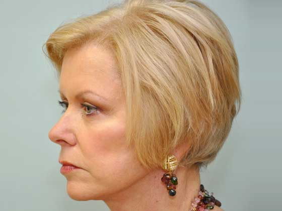 An after photo of a facelift patient