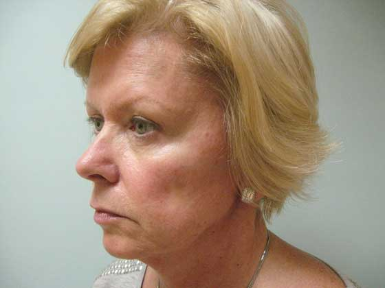 A before photo of a facelift patient