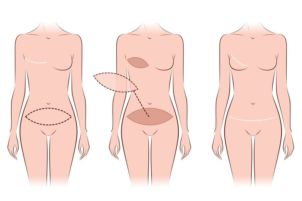 To learn more about DIEP flap and TRAM flap procedures or decide which may  be right for you, contact our plastic surgery office and schedule a  consultation ...
