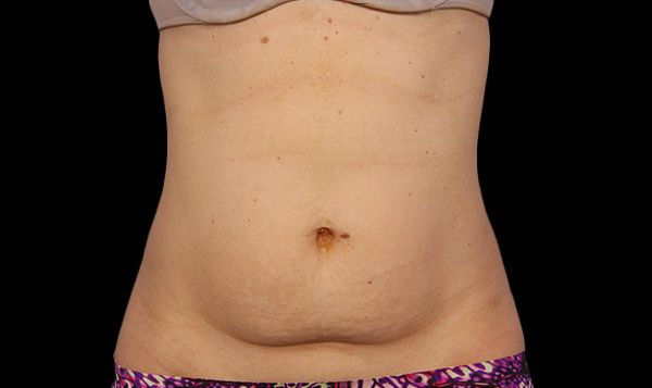 A woman's abdomen before liposuction