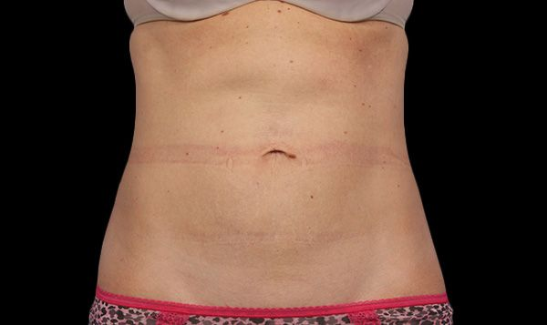 A woman's abdomen after liposuction