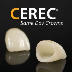 Photo of CEREC crowns