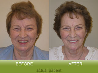 Facelift Denture Patient - Dr. Barthman