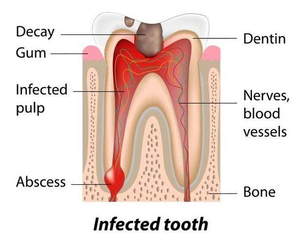 dental infection