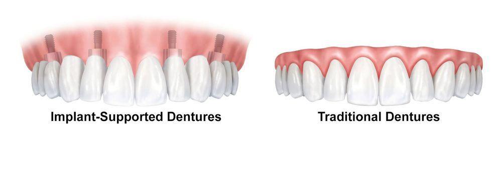 implant dentures versus standard dentures.