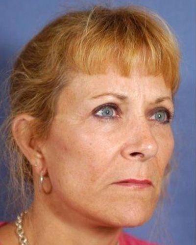 Facial Plastic Surgeon: Woman after facelift