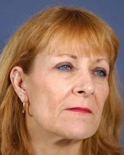 Facial Plastic Surgeon: Woman before facelift