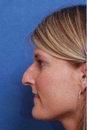 Facial Plastic Surgeon: Before rhinoplasty