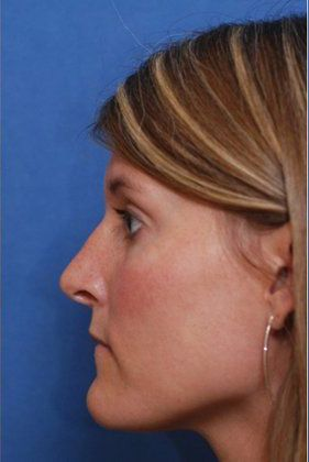 Facial Plastic Surgeon: After rhinoplasty
