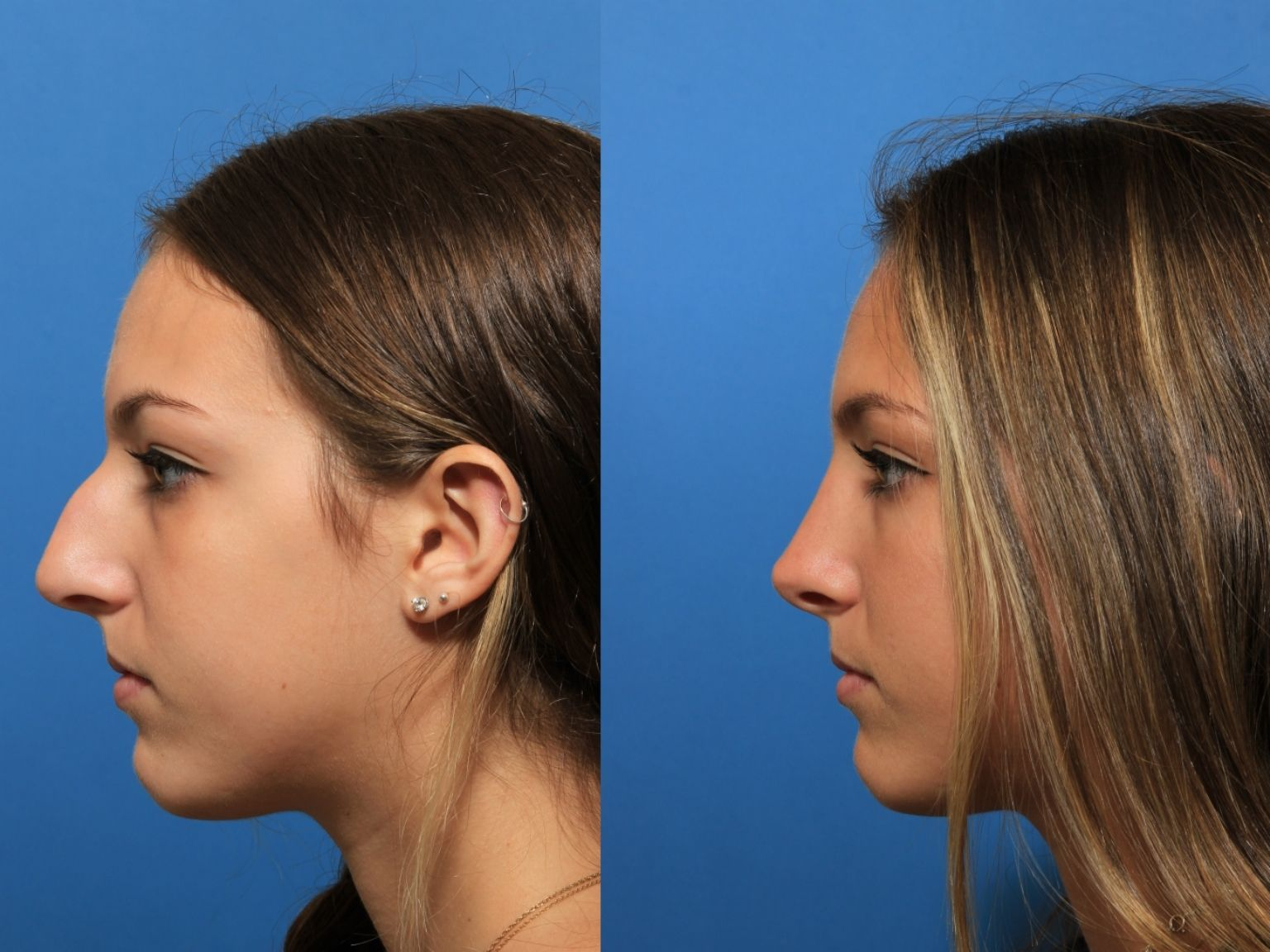 Facial Plastic Surgeon - Manhattan, NY - Jon B  Turk, MD