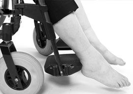 A closeup view of feet dangling from the foot rests on a wheelchair.