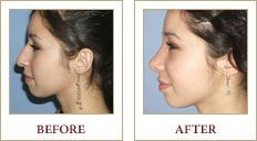 A young brunette woman before and after receiving rhinoplasty.