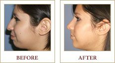 A young woman before and after she has received a rhinoplasty