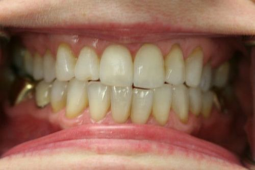 Teeth before whitening treatment.