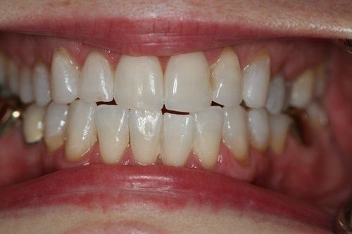 Teeth after whitening treatment.