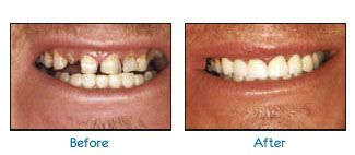 Before and after dental patient pictures