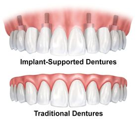 An illustration of traditional and implant-supported dentures