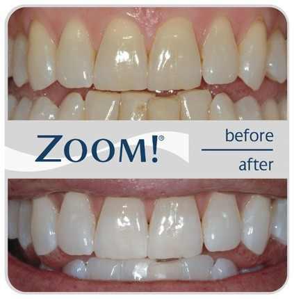 Brookfield Teeth Whitening Zoom Teeth Whitening One Hour Teeth