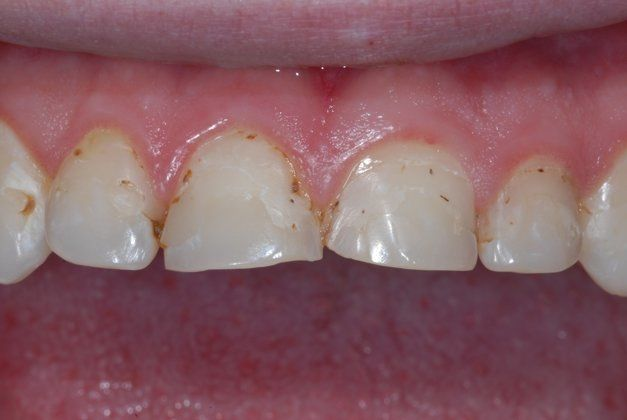 patient with decayed and stained teeth