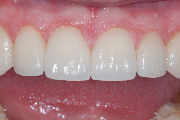 patient with improved teeth