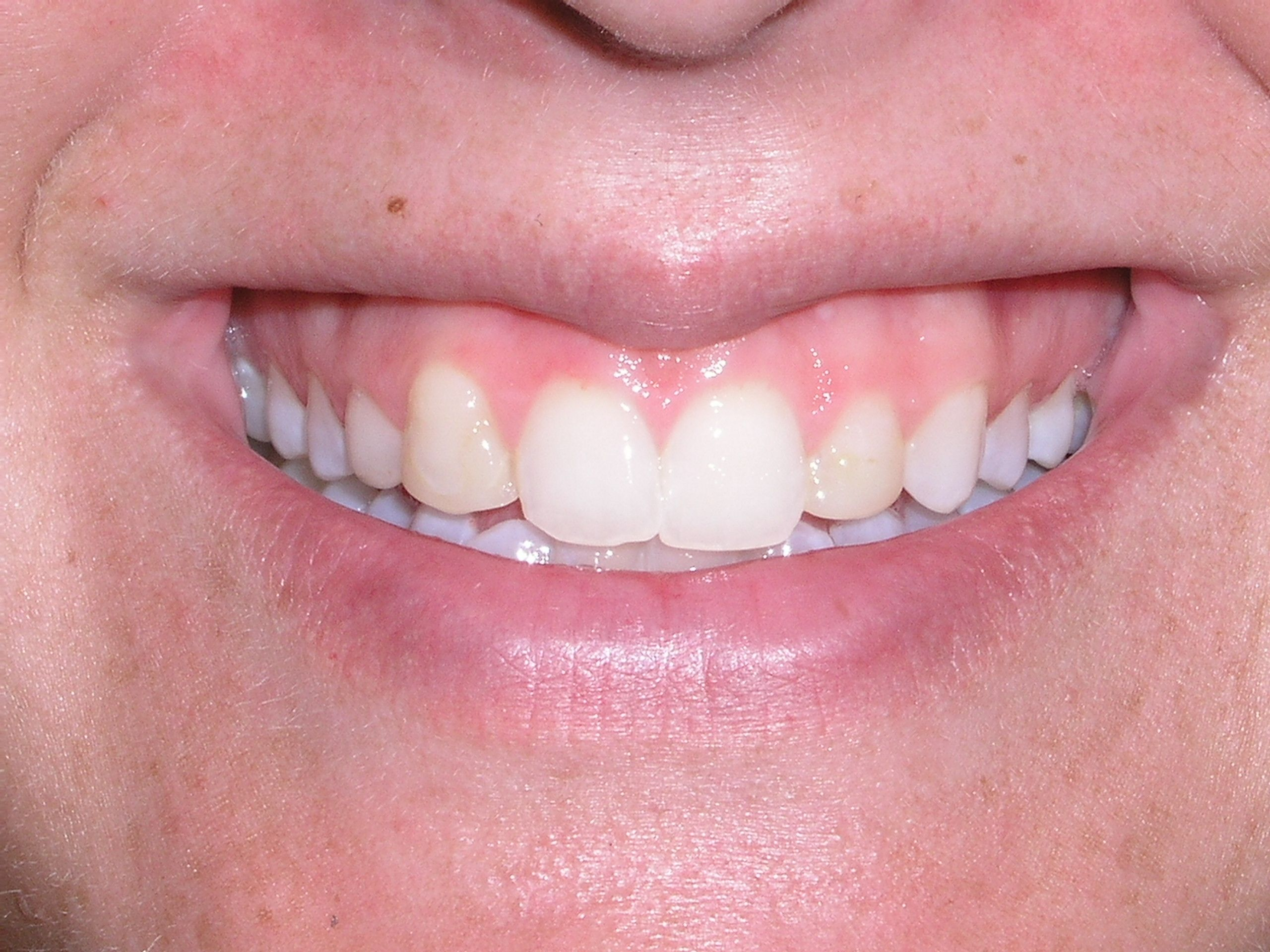 Featured Case 2 Before