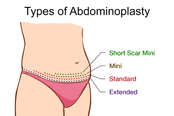 Image of types of tummy tuck surgery