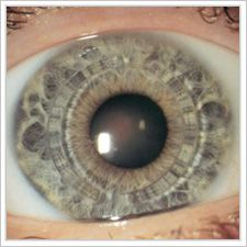 Intacs placed within eye