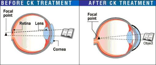 Illustration of eyes before and after CK treatment