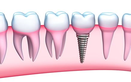 Illustration of dental implant placed in jaw